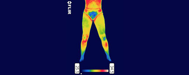 the importance of medical thermography in sport