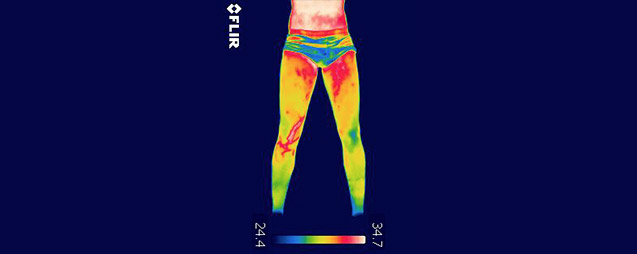 Vascular problem thermography in sports science and medicine