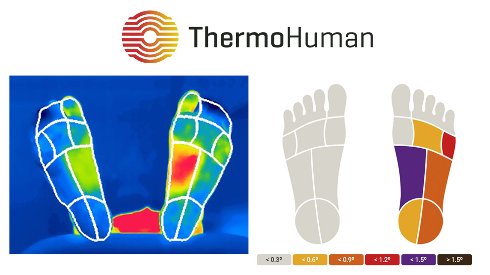 Machine learning foot thermal imaging algorithm