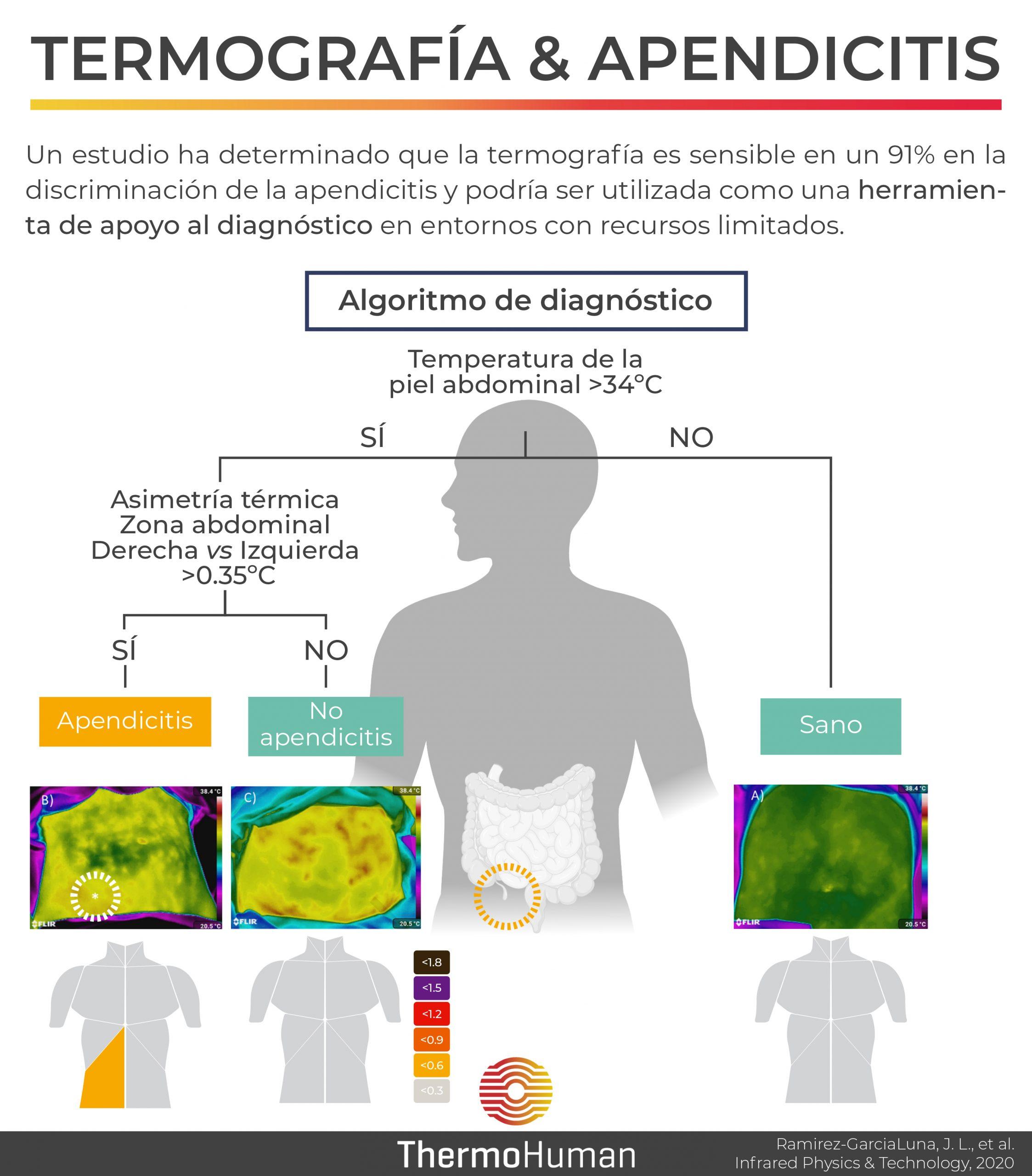 Termografía y diagnóstico de apendicitis