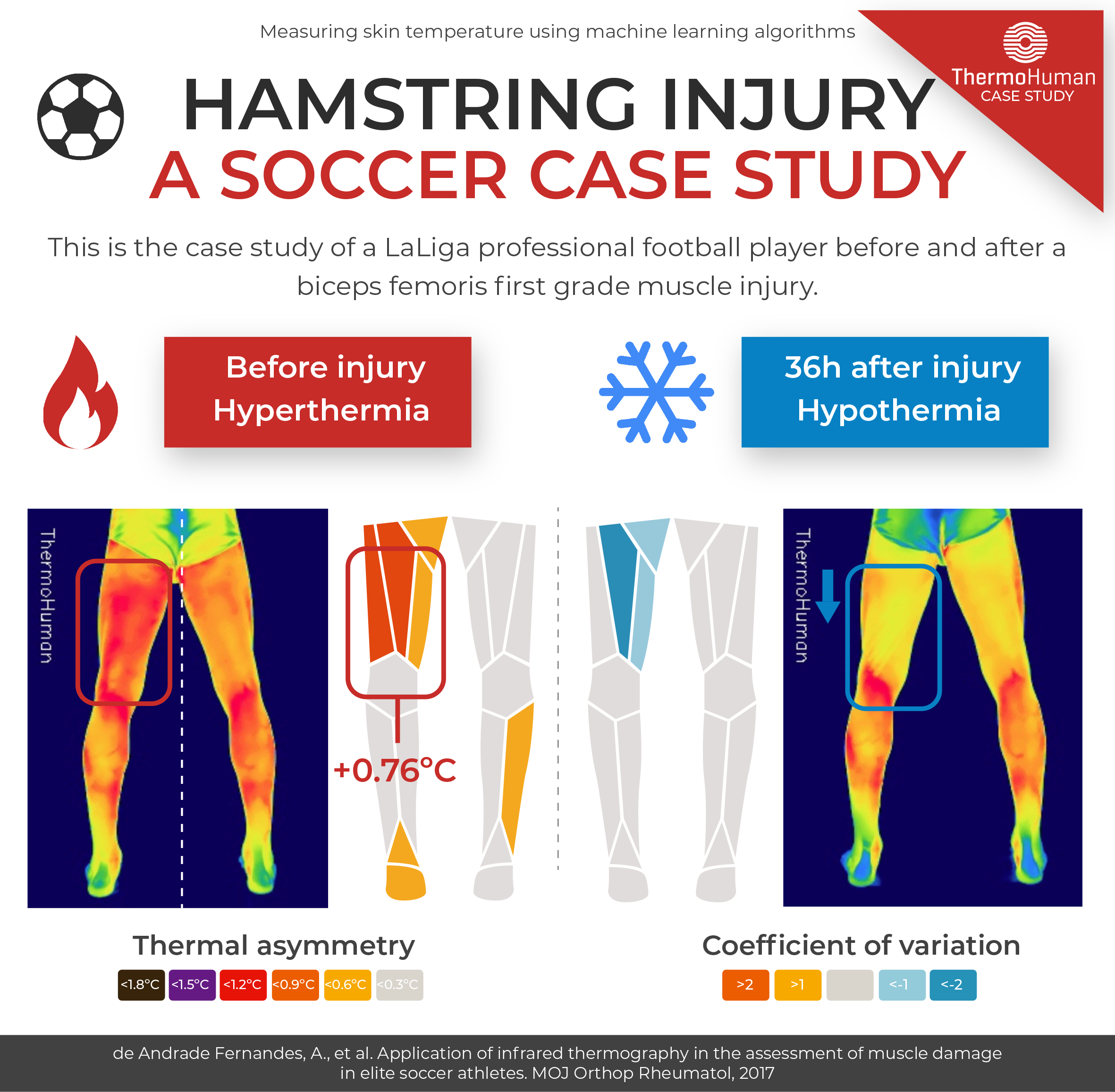 Hamstring injury: a soccer case study